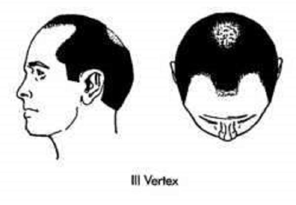 vertex3