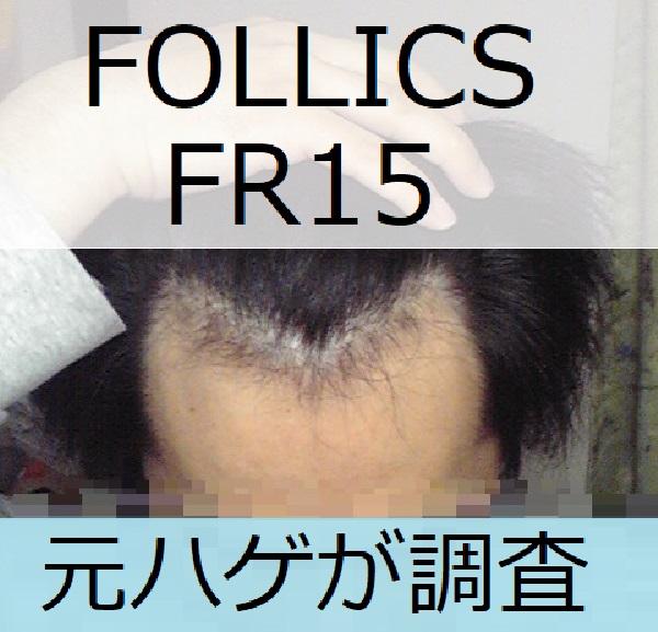 フォリックスFR15